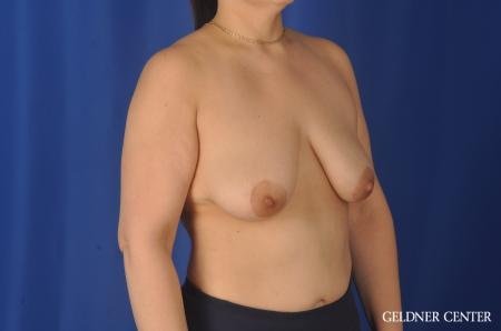 Complex Breast Augmentation: Patient 32 - Before Image 2