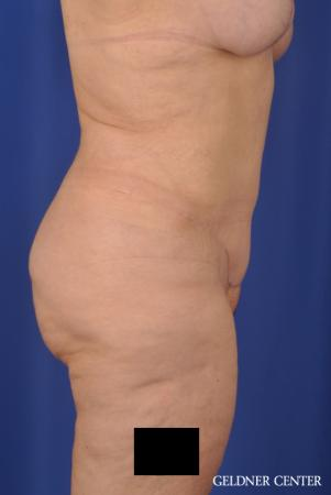 Tummy Tuck: Patient 19 - After Image 3