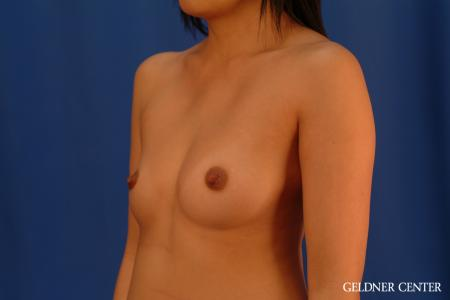 Breast Augmentation: Patient 163 - Before and After Image 4