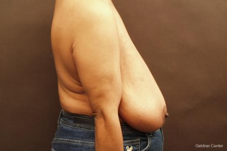 Breast Reduction Hinsdale 2440 - Before Image 2