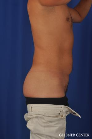 Liposuction For Men: Patient 12 - Before Image 3