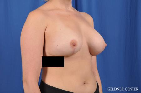 Breast Augmentation: Patient 147 - After Image 2