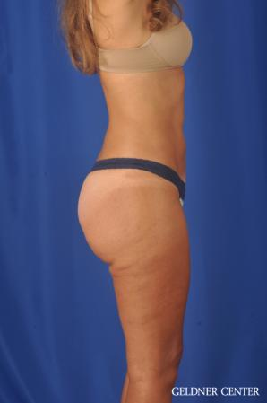 Liposuction: Patient 47 - After Image 3