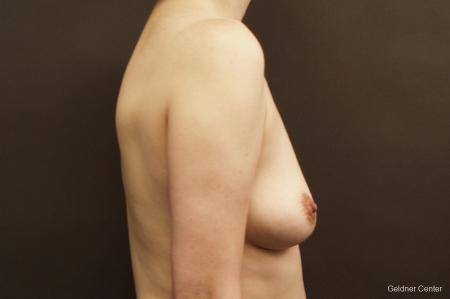 Chicago Breast Augmentation 2413 - Before Image 2