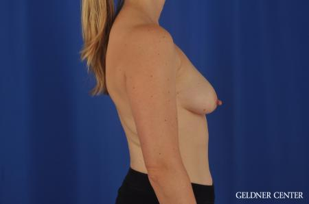 Chicago Breast Lift 4289 - Before Image 3