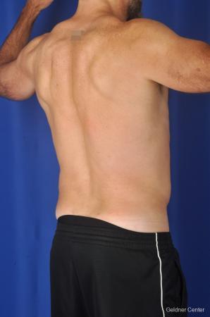 Liposuction For Men: Patient 7 - After Image 4