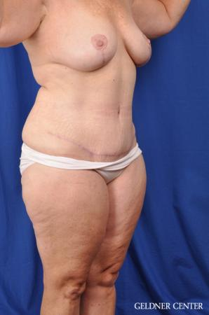 Abdominoplasty Patient 1 before and after photos -  After Image 2