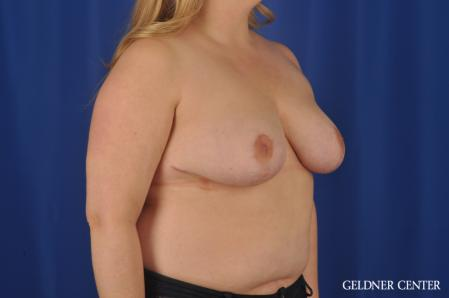 Breast Reduction: Patient 32 - After Image 2