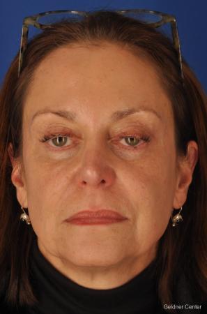 Facelift & Neck Lift: Patient 1 - Before Image 1
