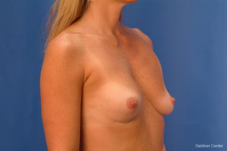 Complex Breast Augmentation Lake Shore Dr, Chicago 2419 - Before Image 2