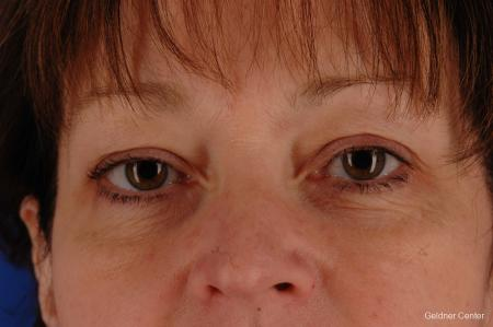 Chicago Eyelid Lift 2323 - Before Image