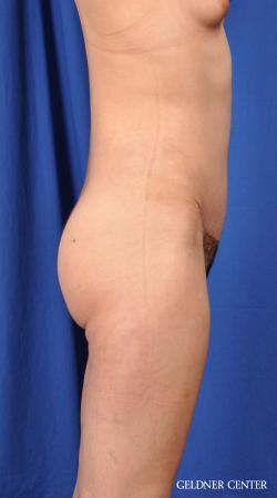 Liposuction: Patient 41 - After Image 3