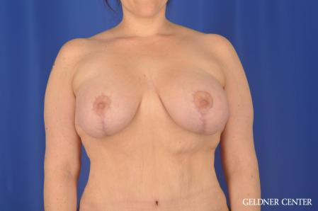 Breast Augmentation: Patient 161 - After 1