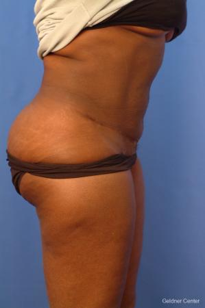 Vaser lipo patient 2540 before and after photos -  After Image 2