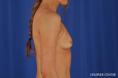 Chicago Breast Augmentation 8745 - Before Image 2