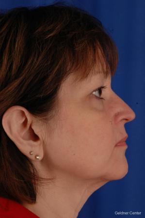 Facelift: Patient 1 - Before Image 2