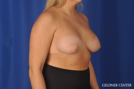 Breast Augmentation: Patient 179 - After Image 2