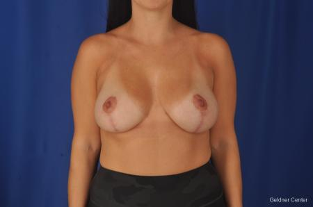 Breast Augmentation: Patient 78 - After Image 1
