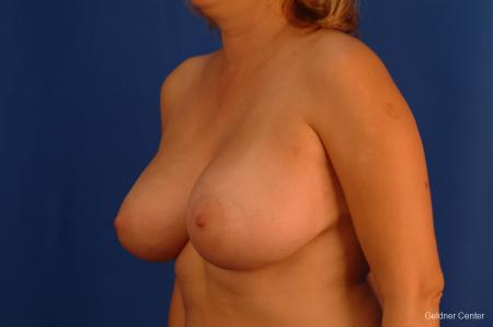 Chicago Breast Augmentation 2532 -  After Image 4