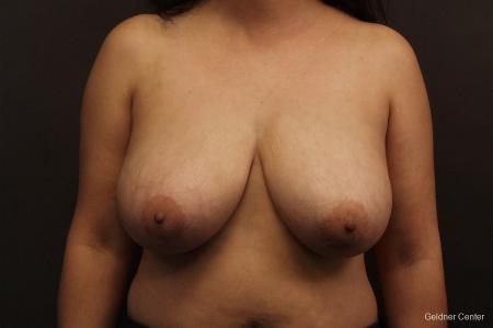 Chicago Breast Reduction 2416 - Before Image 1