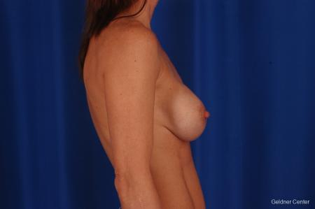 Breast Augmentation: Patient 158 - Before Image 3