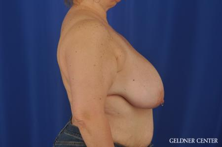 Breast Reduction Lake Shore Dr, Chicago 3223 - Before Image 2