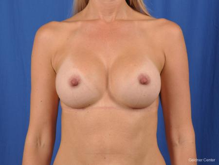 Breast Augmentation: Patient 148 - After Image 1