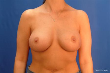 Chicago Breast Augmentation 2432 -  After Image 1