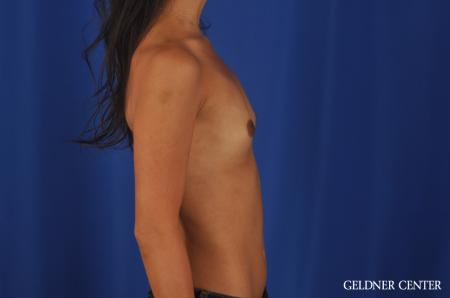 Breast Augmentation Lake Shore Dr, Chicago 5545 - Before Image 3