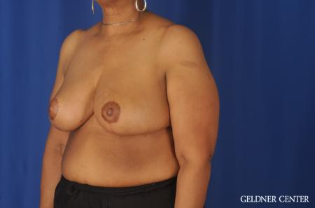 Breast Reduction: Patient 25 - After Image 4