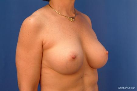 Breast Augmentation Hinsdale, Chicago 2541 -  After Image 3