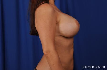 Chicago Breast Lift 5543 -  After Image 3