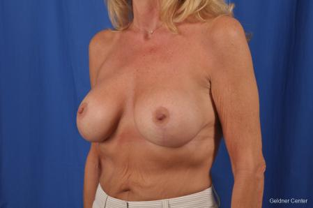 Breast Augmentation: Patient 154 - After Image 4