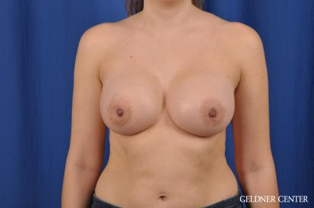 Breast Augmentation: Patient 144 - After Image 1