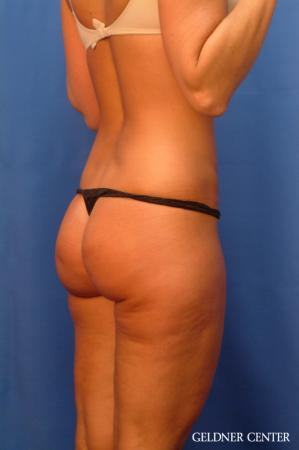 Vaser lipo patient 2624 before and after photos - Before Image 3