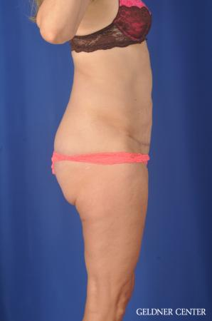 Chicago Abdominoplasty 11854 -  After Image 3