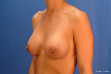 Chicago Breast Augmentation 2521 -  After Image 4