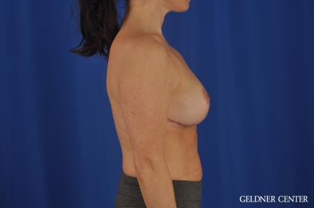 Breast Reduction Hinsdale, 4287 -  After Image 3
