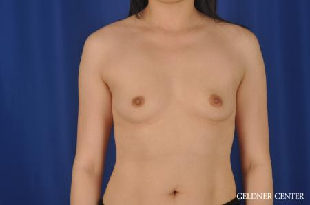 Breast Augmentation Hinsdale, Chicago 8751 - Before Image 1