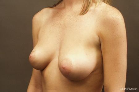 Chicago Breast Lift 2537 - Before and After Image 4
