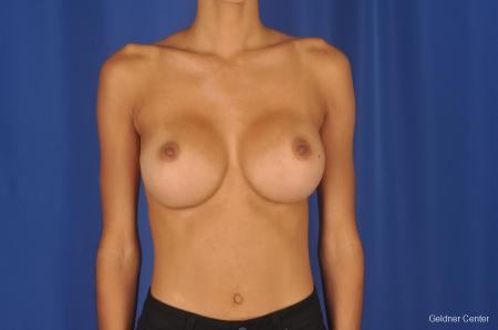 Breast Augmentation: Patient 84 - After Image 1