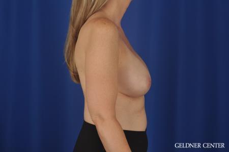 Chicago Complex Breast Augmentation 8750 - Before 2