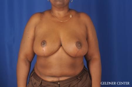 Chicago Breast Reduction 11871 -  After Image 1