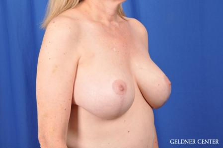 Breast Augmentation: Patient 167 - After Image 2