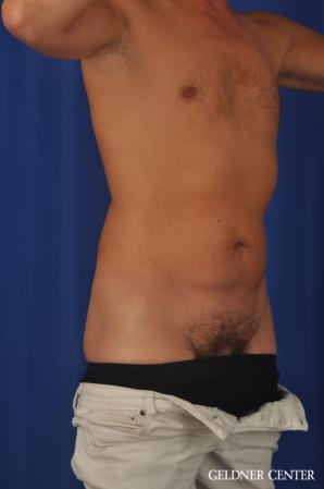 Liposuction For Men: Patient 12 - Before Image 2