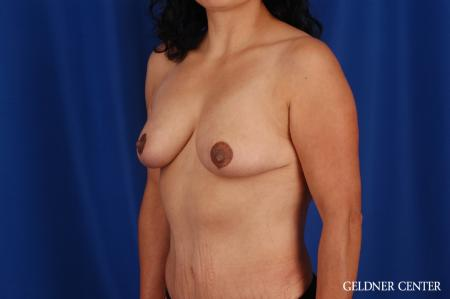 Breast Reduction Hinsdale, Chicago 2630 -  After 5