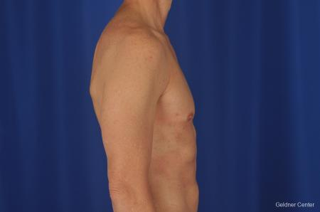 Gynecomastia: Patient 2 - After Image 3
