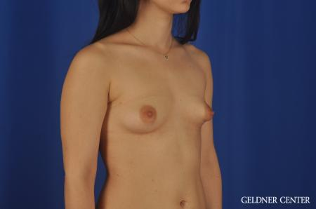 Complex Breast Augmentation Lake Shore Dr, Chicago 5474. - Before 2