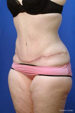 Tummy Tuck: Patient 10 - After Image 3