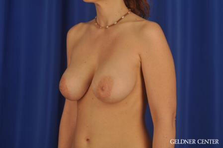 Breast Augmentation: Patient 171 - After Image 4
